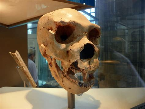 Oldest Cancer Ever?: 120,000-Year-Old Bone Tumor Found In