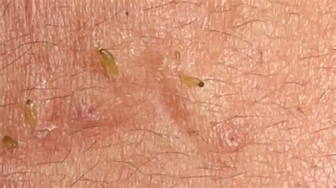 Pimple Popping 2020| Blackheads extraction new| Blackheads